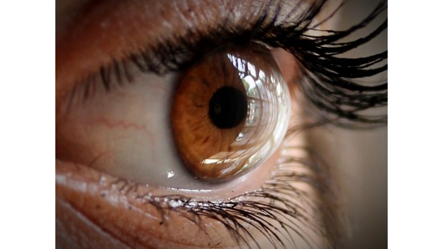 14 worms pulled from eye of woman with rare infection